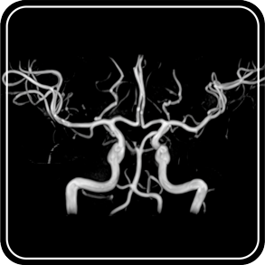 MR angiography